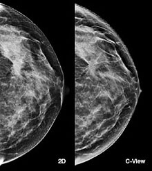 tomosynthesis fda approval Bethesda women's health center is one of the first women's centers in florida to offer 3d mammography (breast tomosynthesis) for breast cancer screening this exciting technology is fda approved bethesda women's health center is using the selenia® dimensions® breast tomosynthesis system made by hologic.